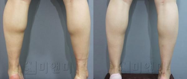 종아리보톡스로 다리근육량 축소